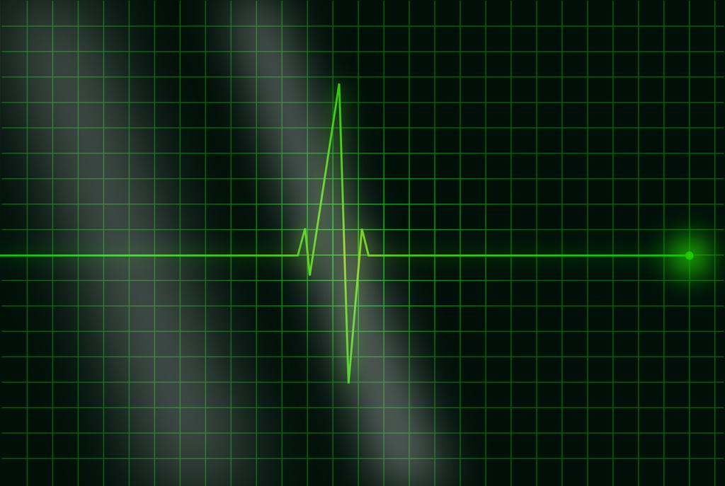electrocardiogram-36732_1280